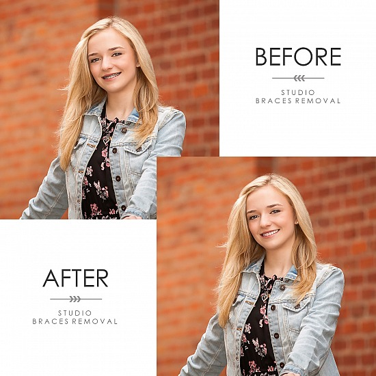 BEFORE & AFTER - POST-PRODUCTION